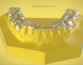 3D print model Digital Ortho Tanner