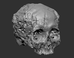 Skull Human skeletal 3D printable model