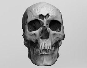 3D Facial reconstruction kit