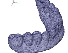 3D dental prosthesis - denture