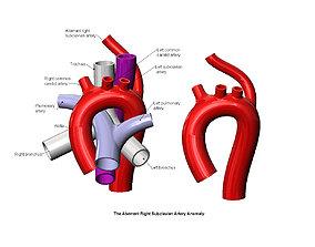 Aberrant right subclavian artery 3D printable model
