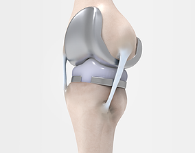 Knee Replacement 3D