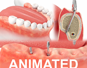 3D model Jaws with Dental Implants Animation