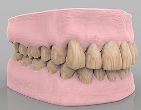 Teeth 2 with Gums and Texture 3D