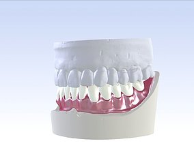3D print model Digital Single Jaw Full Denture