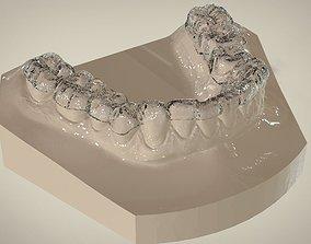 3D printable model Digital Dental Lower Overlay Hard