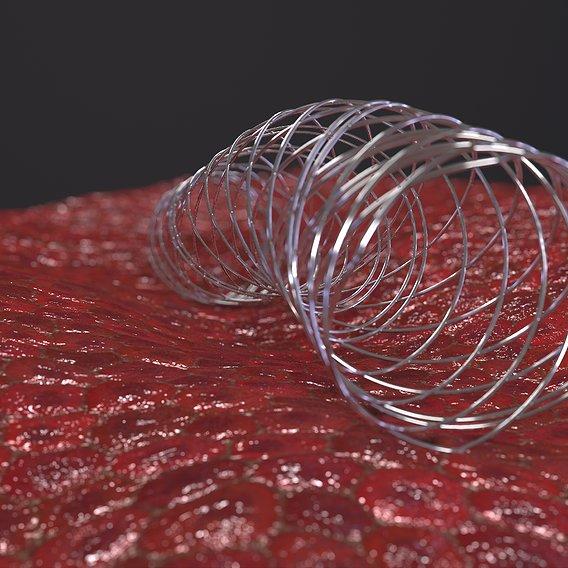 Intravascular stent