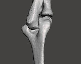 Right elbow - female - age 37 3D model