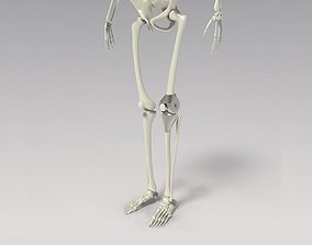 Knee Tumor Prosthesis 3D model