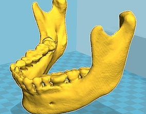 Lower Mandible Modeling