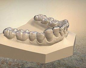 3D Digital B Splints cad