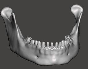 Human mandibular jaw with typodont 3D printable model