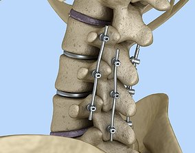 Spinal fixation system - titanium 3D model