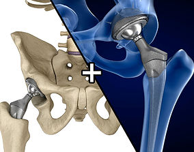 3D model Hip replacement implant installed in the pelvis