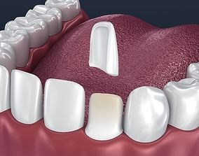 3D model Dental veneer preparation and instalation