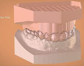 Digital Bleaching Tray 3D print model
