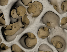 3D normal bone structure and osteoporosis bone structure