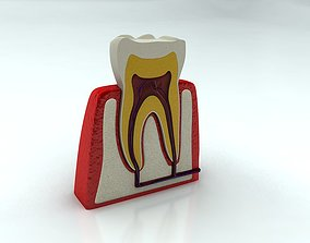 Tooth with Cutaway 3D model