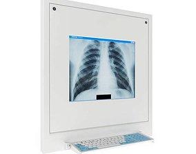 3D Model X Ray Display