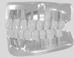 3D Dental implant dental