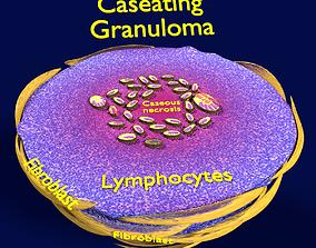 3D model Caseating granuolma tuberculosis labelled