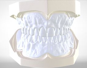 Digital Try-in Full Dentures for Injection 3D print model