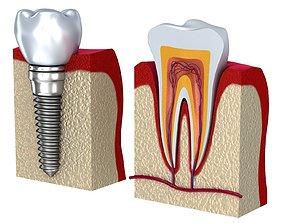 3D model Anatomy of healthy teeth and dental implant in 1
