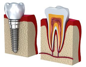 3D model Anatomy of healthy teeth and dental implant in 1