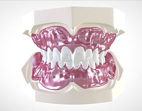 3D print model Digital Full Dentures for Gluedin Teeth 2