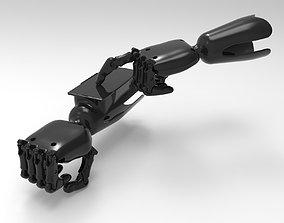 Hand Prosthesis 3d print model prosthesis