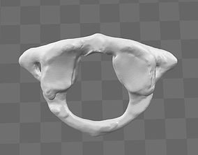3D model C1 first cervical vertebra - female