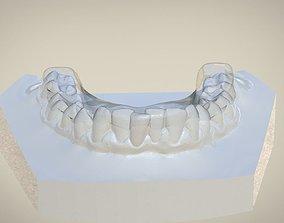 Digital Dental Flat Occlusal Plane Splint 3D print model