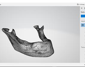 3D Mandible model