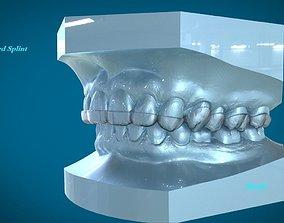 Digital Dental Dayguard Splint 3D print model