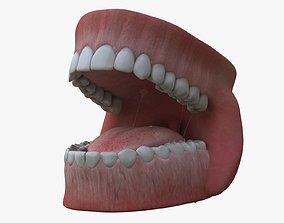 3D animated Teeth