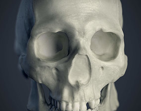 Cranial facial reconstruction - 3D printable model 3