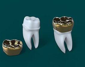 3D model Dental Implant crown