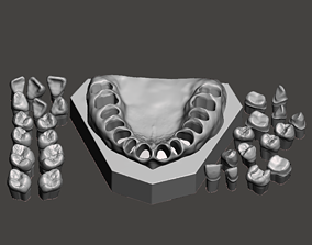 dentist Dental Sample model