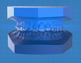 3D printable model Ortho Anterior Repositioning Splint