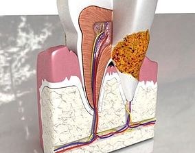 Tooth Dental Plaque High Detail 3D