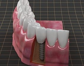 Dental Implant 01 3D