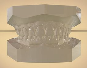 Digital Orthodontic Study Models with Virtual ABO Bases