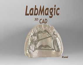 3D print model Digital Removable Partial Denture