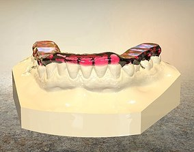 Digital Tanner Splint Orthodontics 3D print model