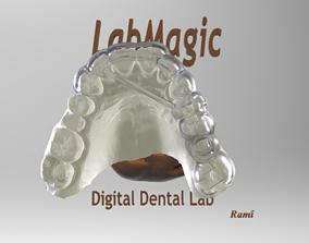 3D print model Digital Surgical Guide
