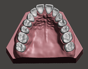 Maxillary dental model science