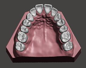 Maxillary dental model