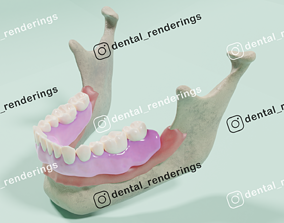 Overdenture - Bar-clip lower denture retained by 3D model