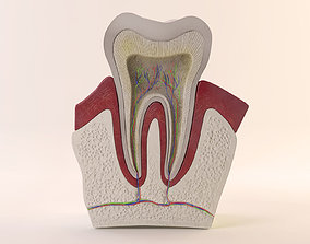 3D Tooth Diagram