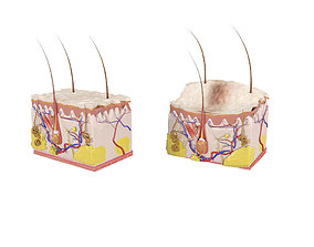 3D model Skin layers Epidermis dermis Injections